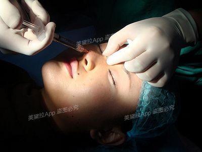 双眼皮割的过宽,半年后就可修复